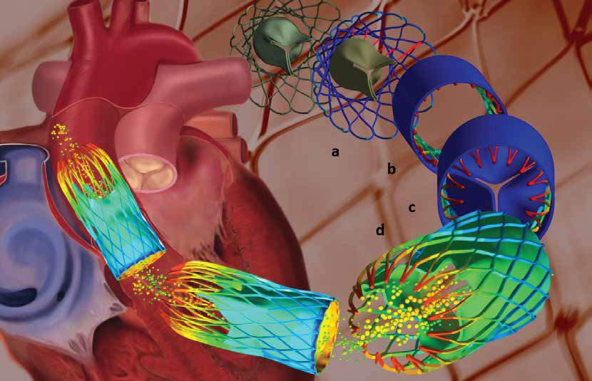 <p>Multiphysics simulation of a new heart-valve replacement procedure could eliminate the need for open-heart surgery</p>
